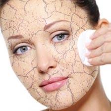 Effetti pelle disidratata